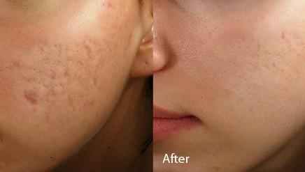 Cicatrices faciales que se desvanecen