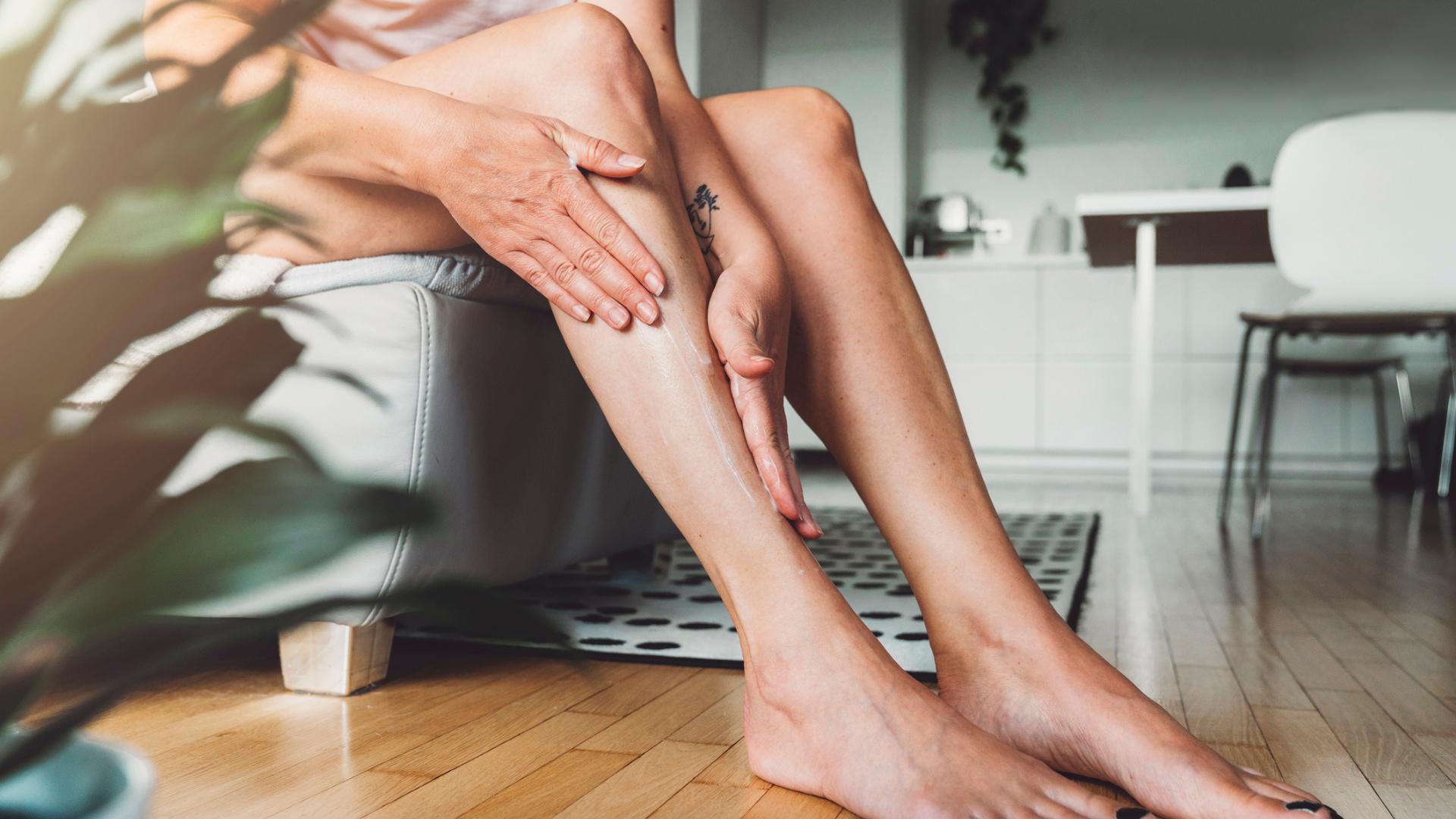 Elimina las varices con un tratamiento muy fácil que puedes hacer en casa